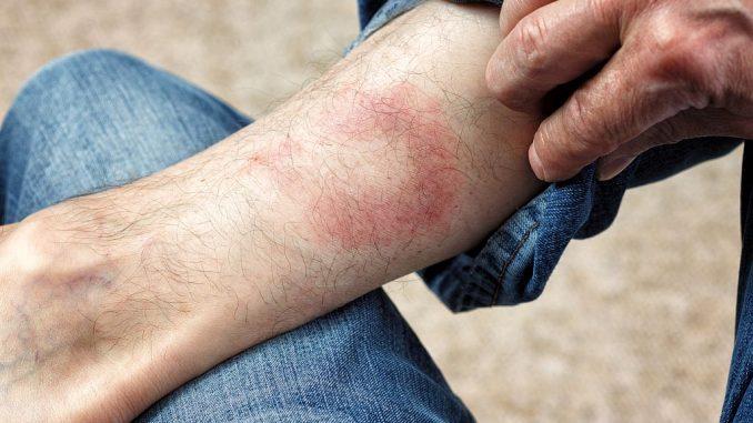 Wanderröte am Bein, verursacht durch Zeckenstich