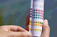 Wasseranalyse | Bild: Oase